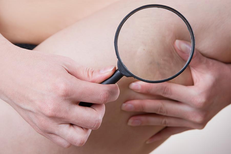 Est-ce qu'une varice disparaît après traitement ?
