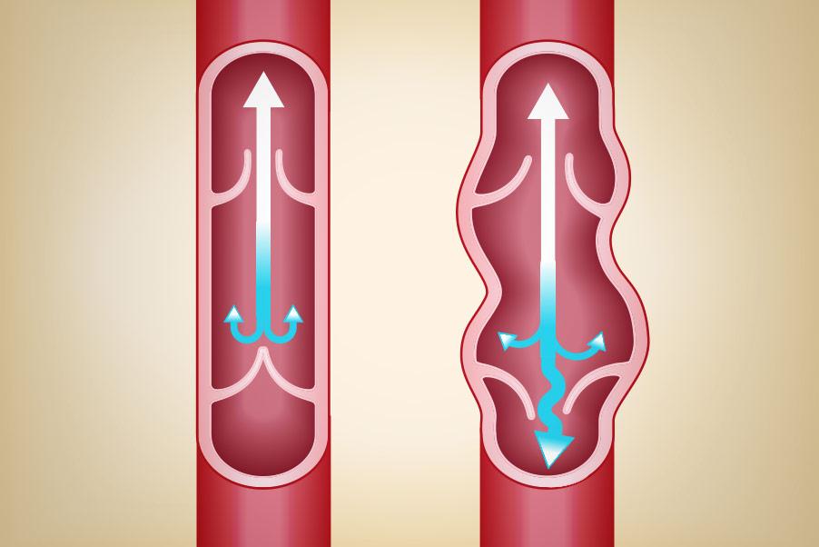 Description de la maladie veineuse